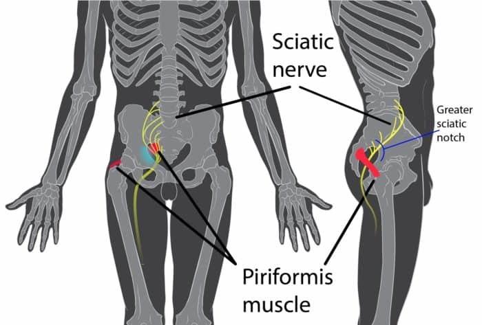 sciatic nerve - exercises for sciatica pain