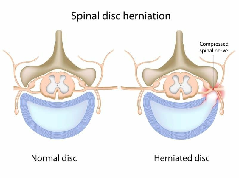 4 Popular Herniated Disc Exercises To Avoid Precision Movement