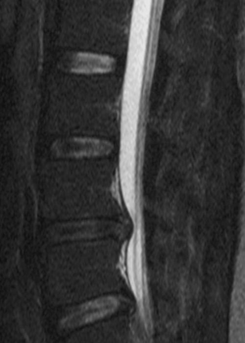 herniated disc image - sciatica stretches