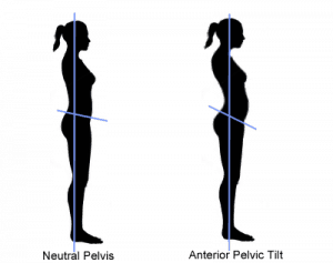 anterior and neutral pelvic titlt