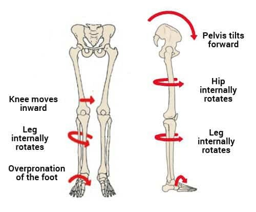 anterior pelvic tilt internal hip rotation
