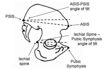 asis posterior pelvic tilt