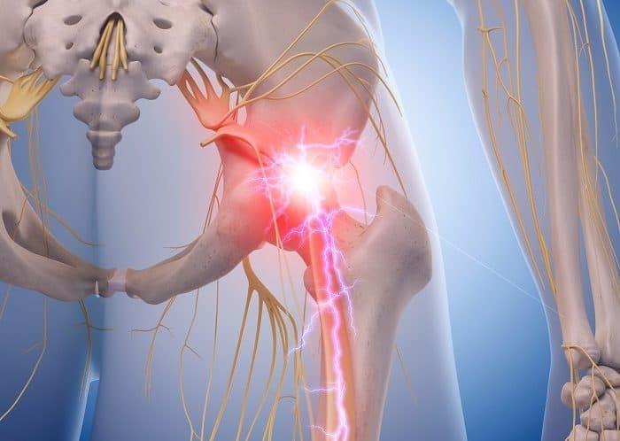 lumbar londosis anterior pelvic tilt