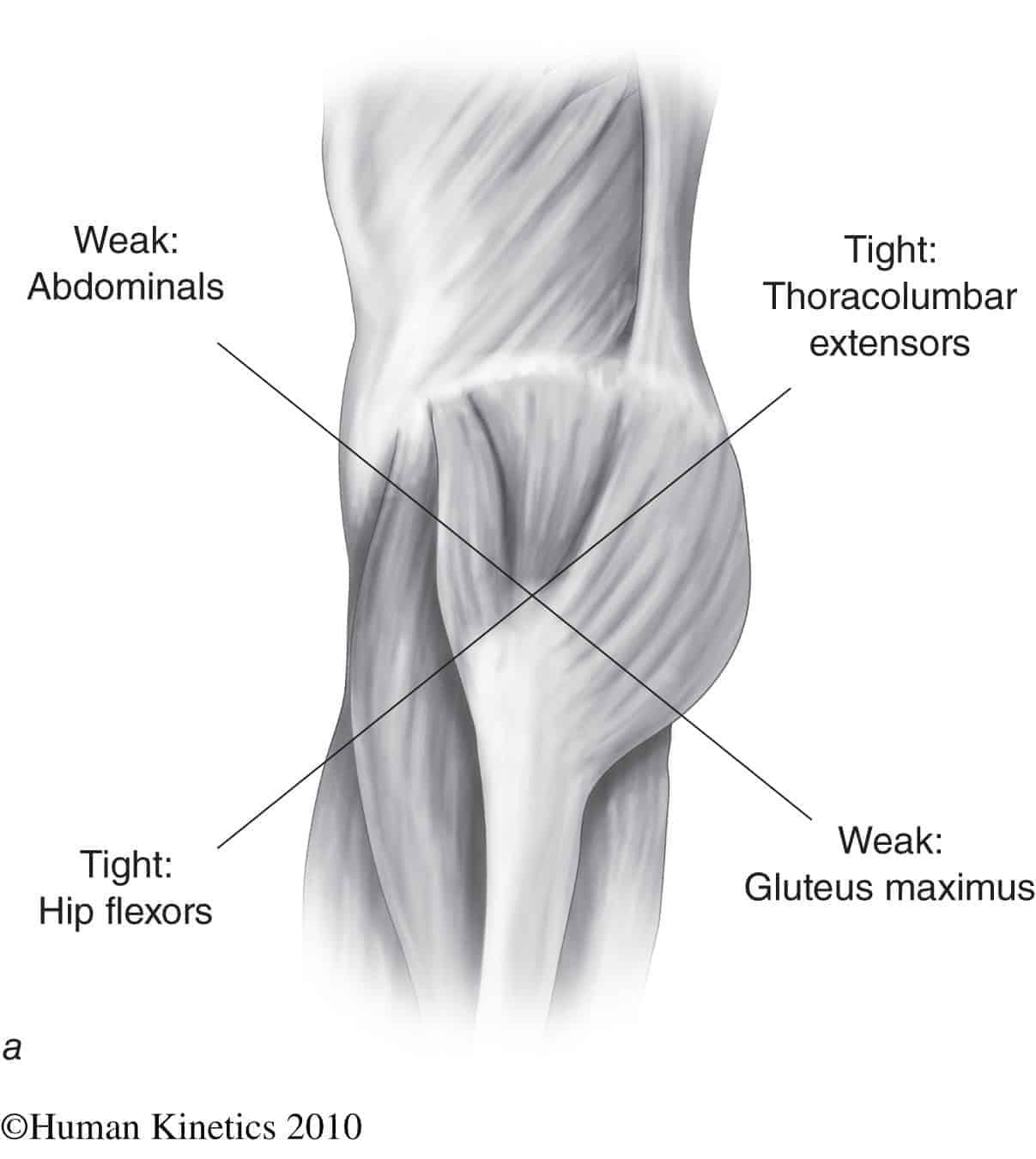 muscle imbalance and anterior pelvic tilt