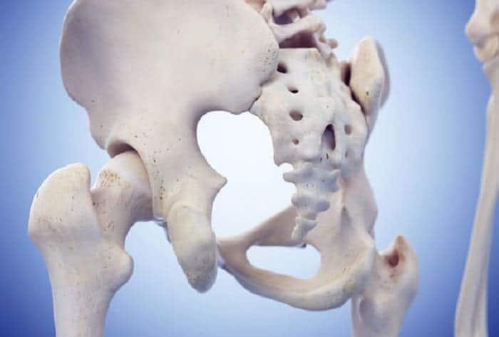 femoral acetabular impingement