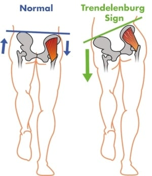 gluteus medius weakness and trendelenburg sign