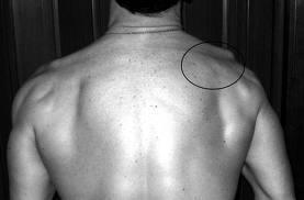 scapular dyskinesis - type 3