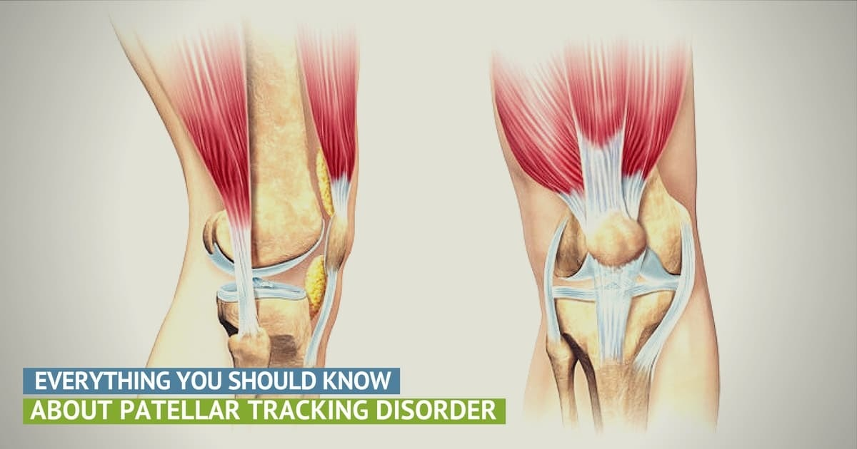 The Truth About Patellar Tracking Disorder Precision Movement