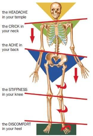 patellar tracking disorder - kinetic chain