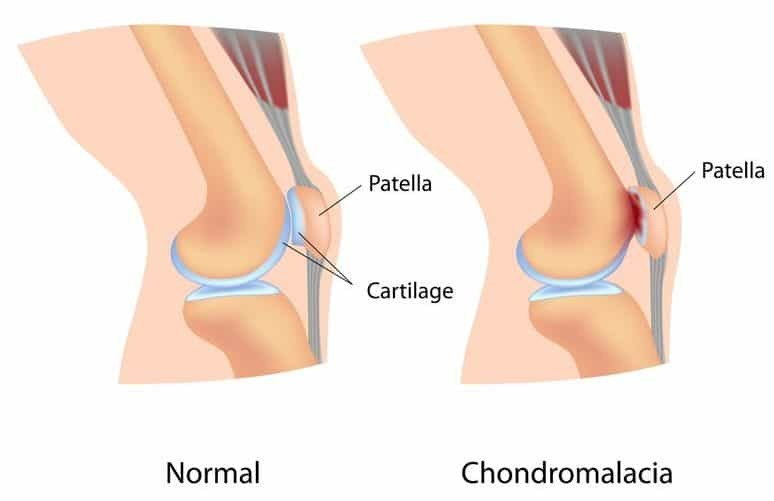 5 Patellofemoral Pain Syndrome Exercises for Healthy Knees ...