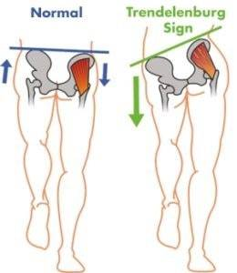 patellofemoral pain syndrome exercises - trendelenburg sign