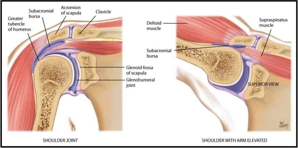 subacromial impingement steroid injection