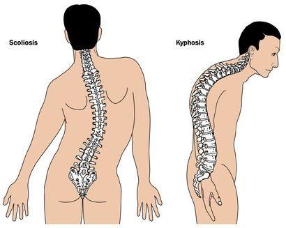 scapular stabilization exercises kyphotic thoracic spine spine deformities, hunchback bicep tendonitis
