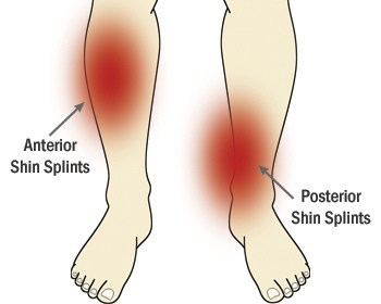 Shin splints: also known as medial tibial stress syndrome, overpronation and a pronated foot posture showed strong evidence as a risk factor as outlined in this 2014 study.