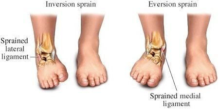 how to treat a sprained ankle strains