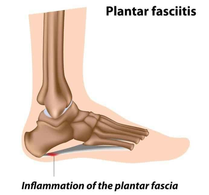 plantar fasciitis, foot problem