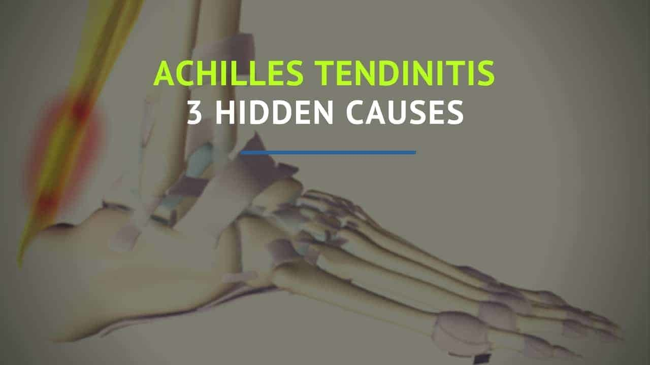 achilles tendinitis 3 hidden causes