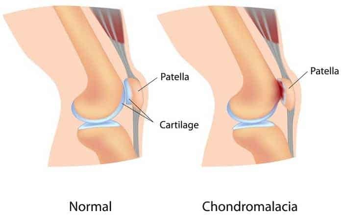 sharp-knee-pain-when-squatting-Chondromalacia-patella