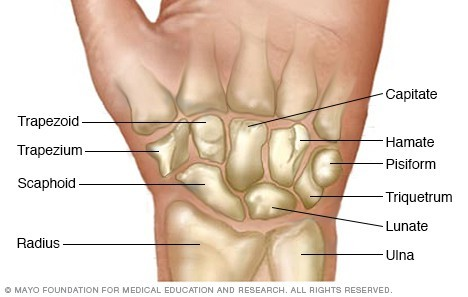 How to Treat a Sprained Wrist Bones