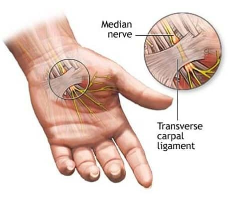 carpal tunnel symptoms median nerve