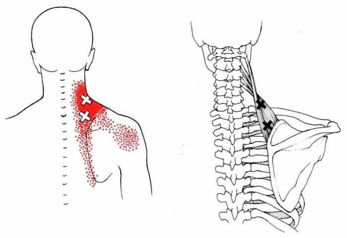 levator scapulae stretch anatomy