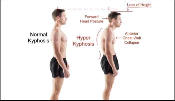 levator scapulae stretch kyphosis