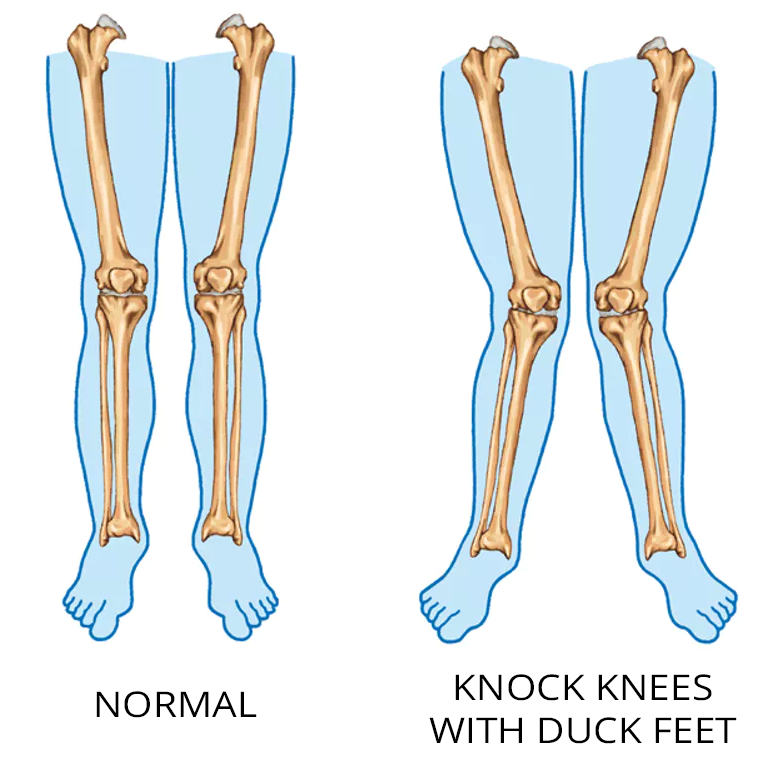 tensor fasciae latae pain duck feet and knock knees