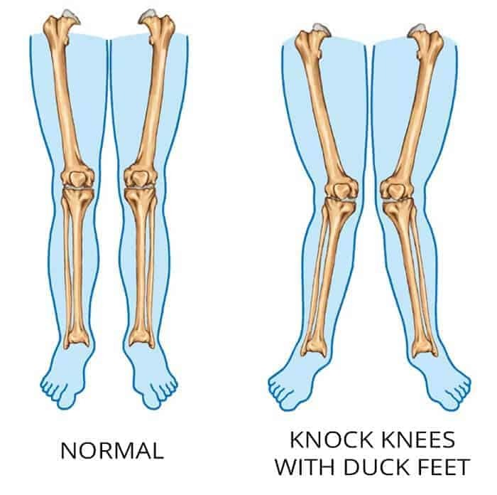 tensor fasciae latae pain - duck feet and knock knees