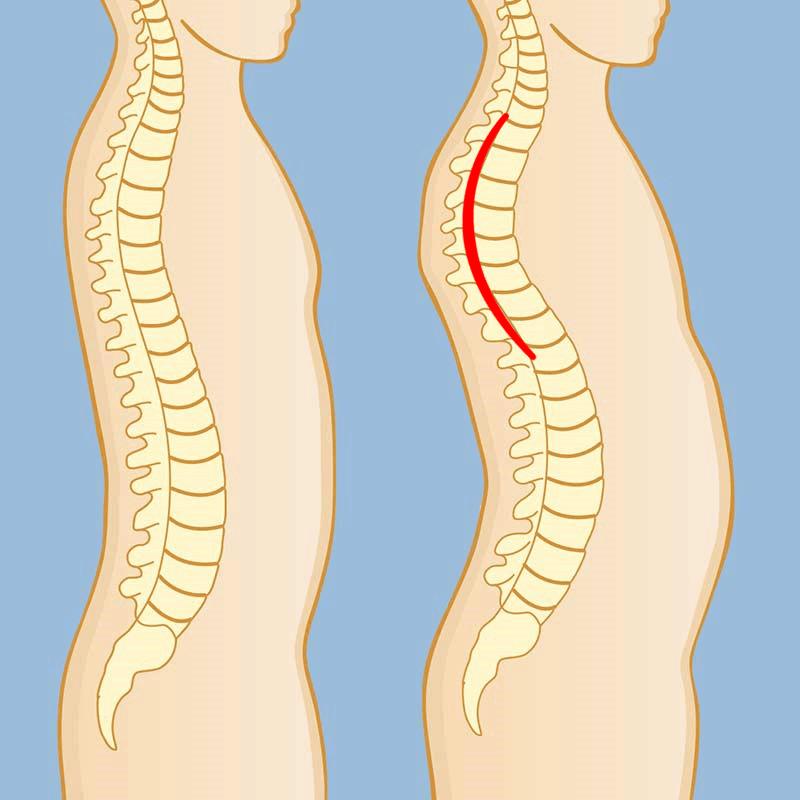 kyphosis posture