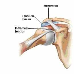 serratus anterior weakness impingement