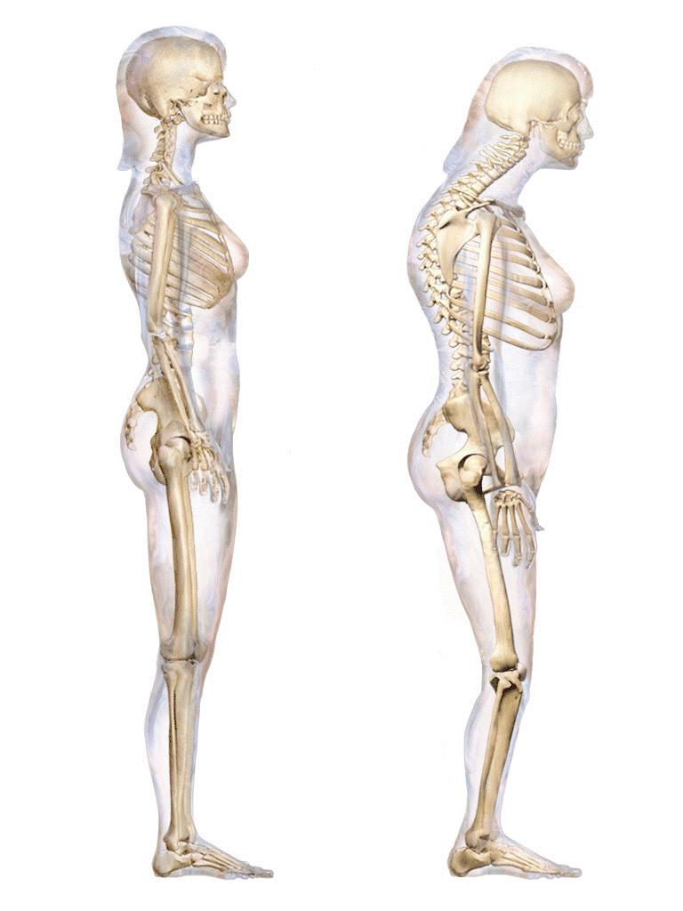 serratus anterior weakness posture