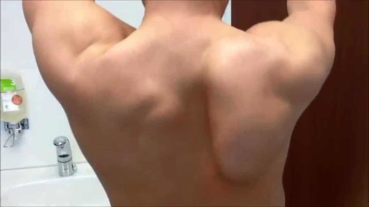winged scapula serratus anterior weakness