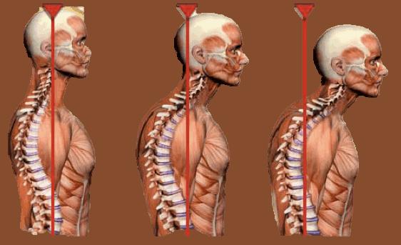 stiff neck posture