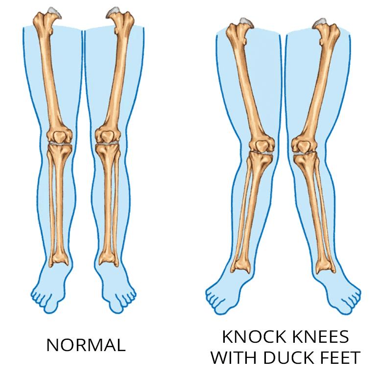 Tensor fasciae latae pain issues associated with valgus (knock) knees