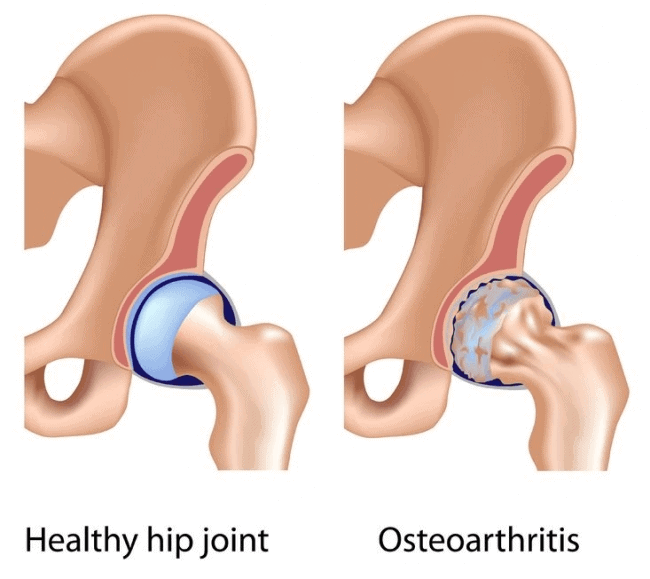 tfl pain issues associated with hip osteoarthritis