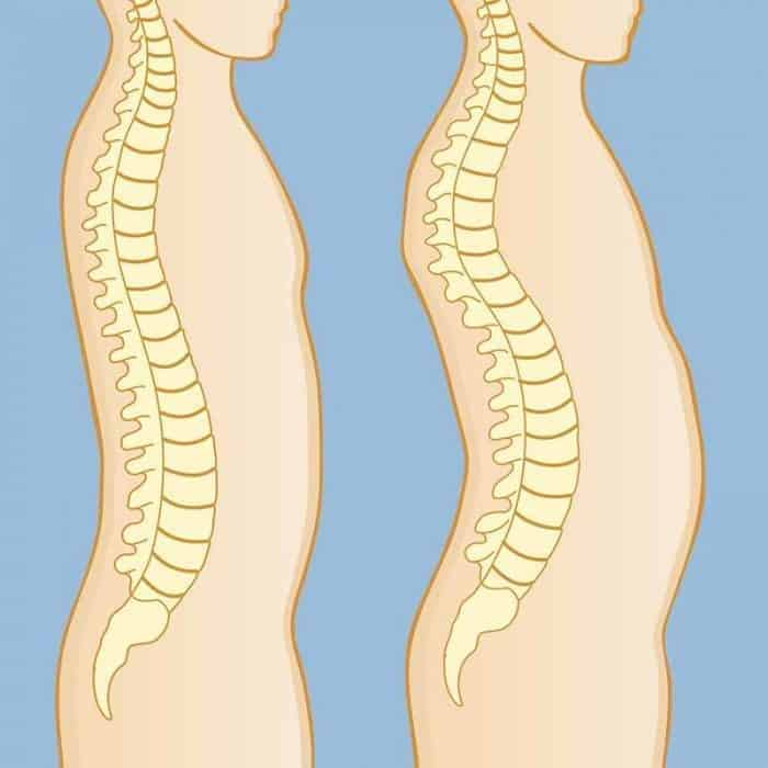 Hunchback posture, or thoracic kyphosis, is a common problem. The midback, or thoracic region of your spine (T-Spine) naturally has an outward or kyphotic curve to it.